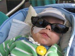 Krankes Baby, das von der Ambulanten Kinderkrankenpflege versorgt wird